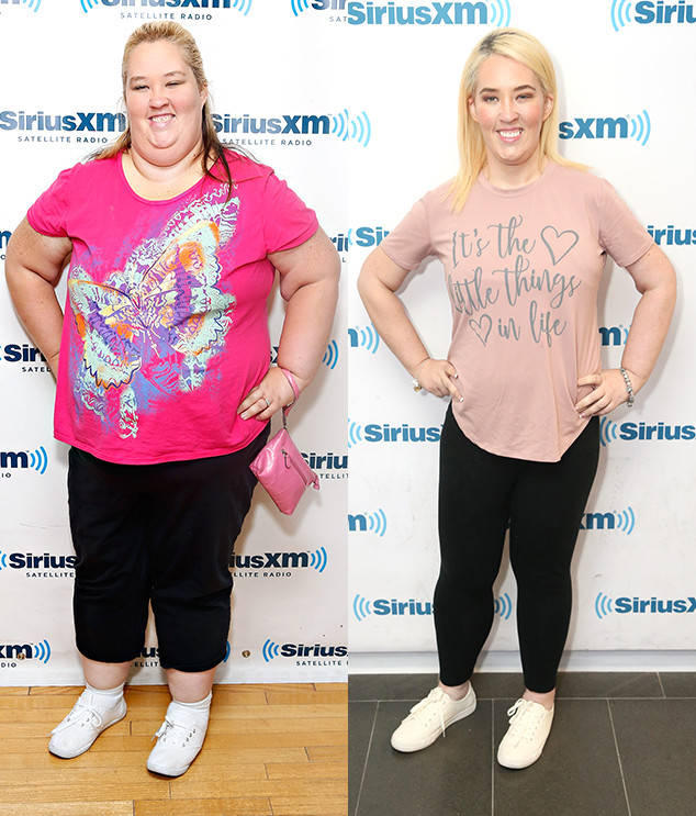 These Stars Underwent Gastric Sleeve Surgery And The Results Are